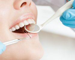Ağız ve diş sağlığı hakkında genel bilgiler